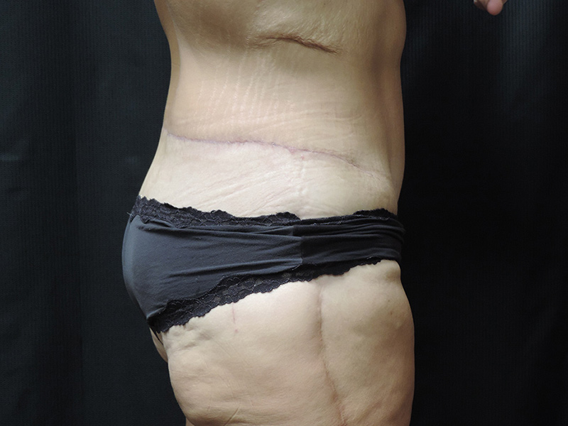 Body Lift Akron Before & After | Patient 01 Photo 3