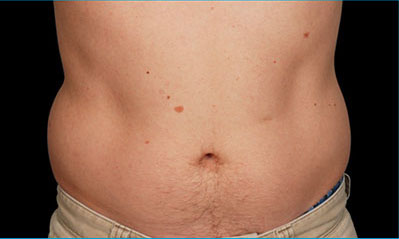 CoolSculpting Akron Before & After | Patient 05 Photo 0