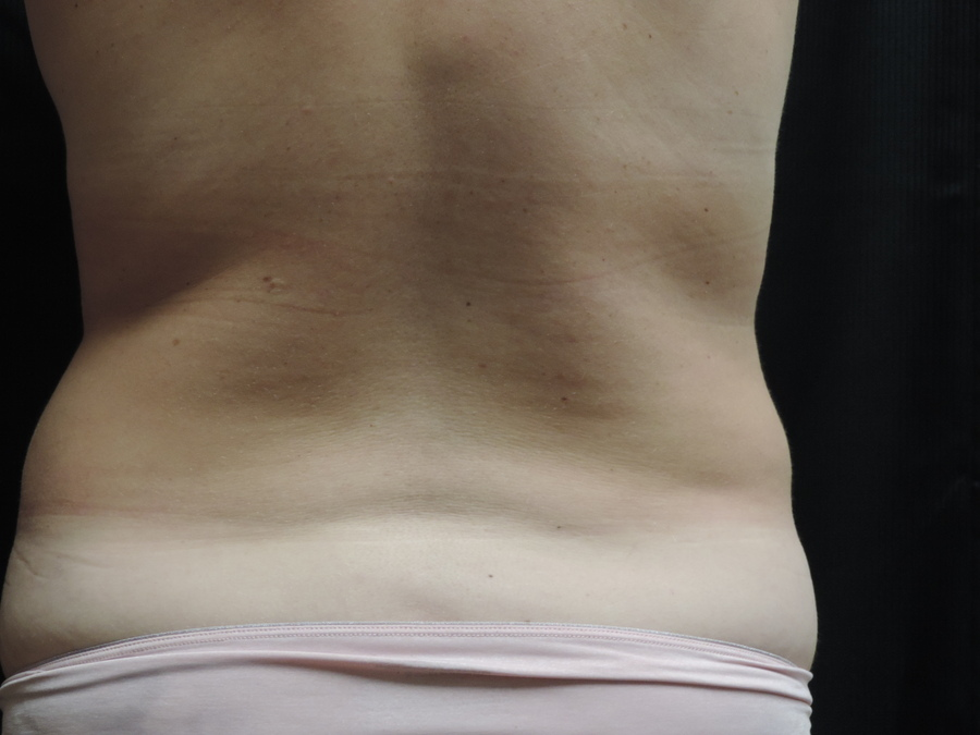 Liposuction Akron Before & After | Patient 01 Photo 1