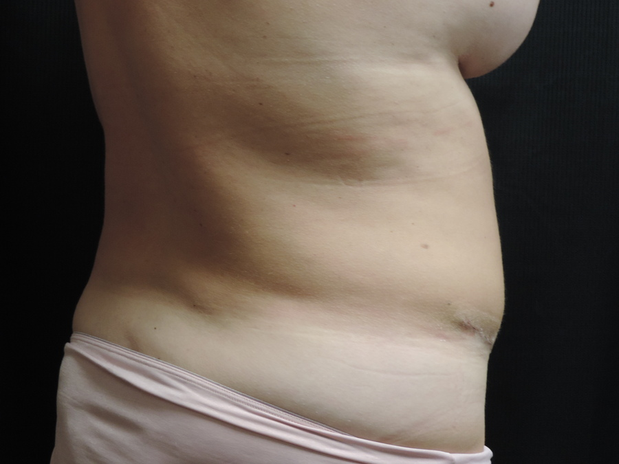 Liposuction Akron Before & After | Patient 01 Photo 3