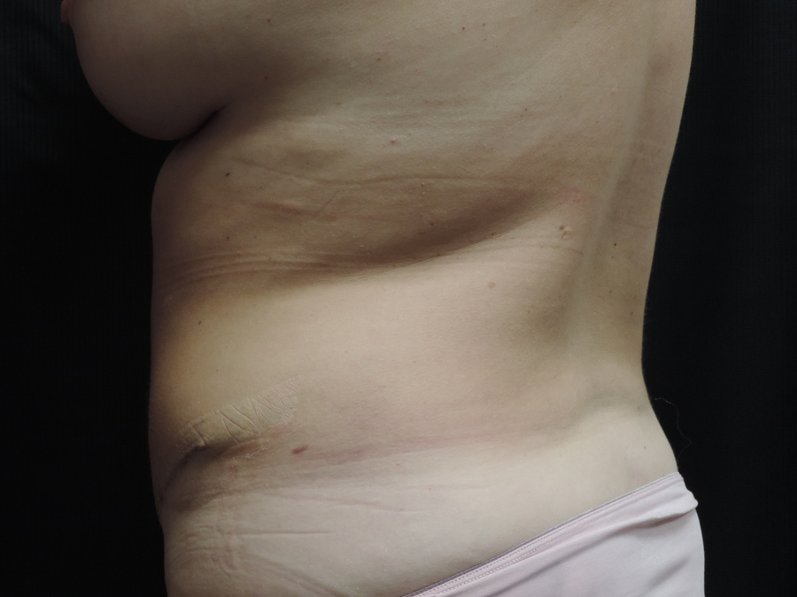 Liposuction Akron Before & After | Patient 01 Photo 5