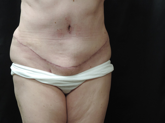 Tummy Tuck Akron Before & After | Patient 02 Photo 1