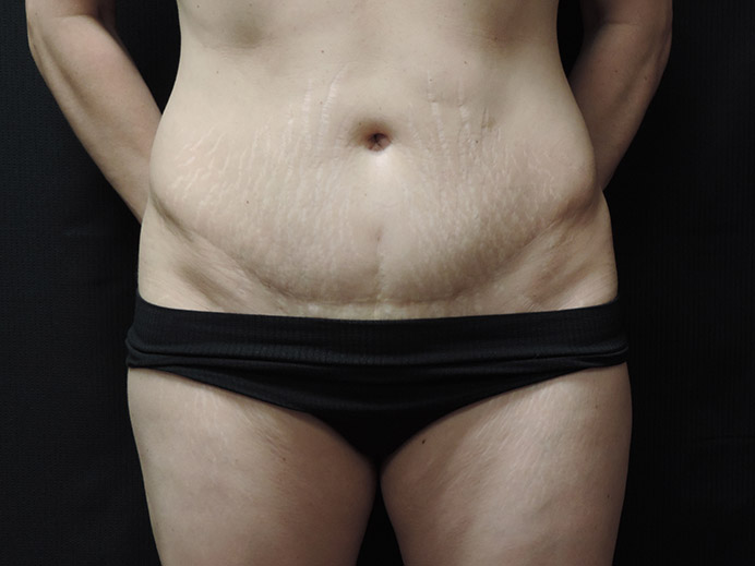 Tummy Tuck Akron Before & After | Patient 03 Photo 0 Thumb