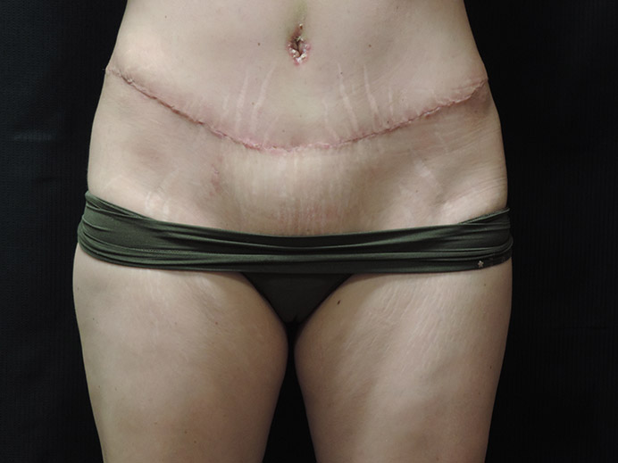 Tummy Tuck Akron Before & After | Patient 03 Photo 1 Thumb