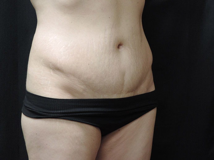 Tummy Tuck Akron Before & After | Patient 03 Photo 2 Thumb