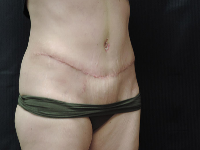 Tummy Tuck Akron Before & After | Patient 03 Photo 3 Thumb