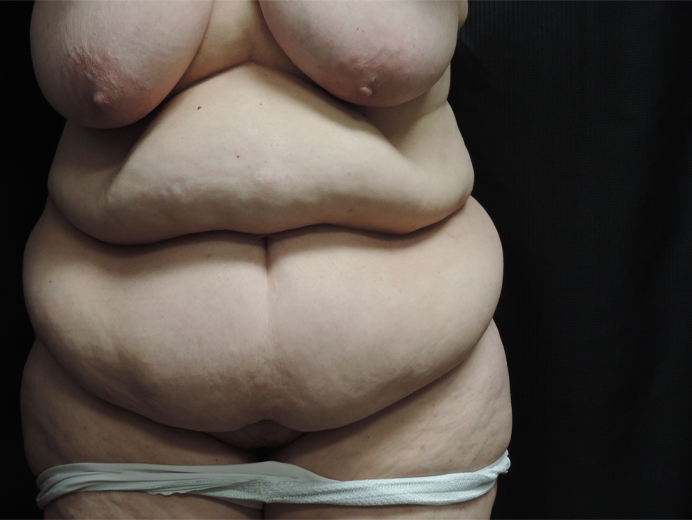 Tummy Tuck Akron Before & After | Patient 04 Photo 0 Thumb