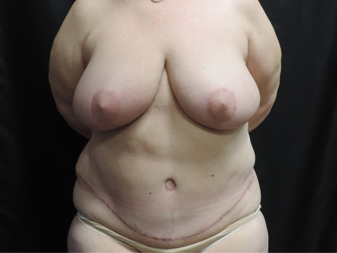 Tummy Tuck Akron Before & After | Patient 04 Photo 1 Thumb