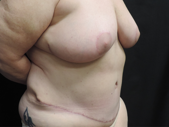 Tummy Tuck Akron Before & After | Patient 04 Photo 3 Thumb