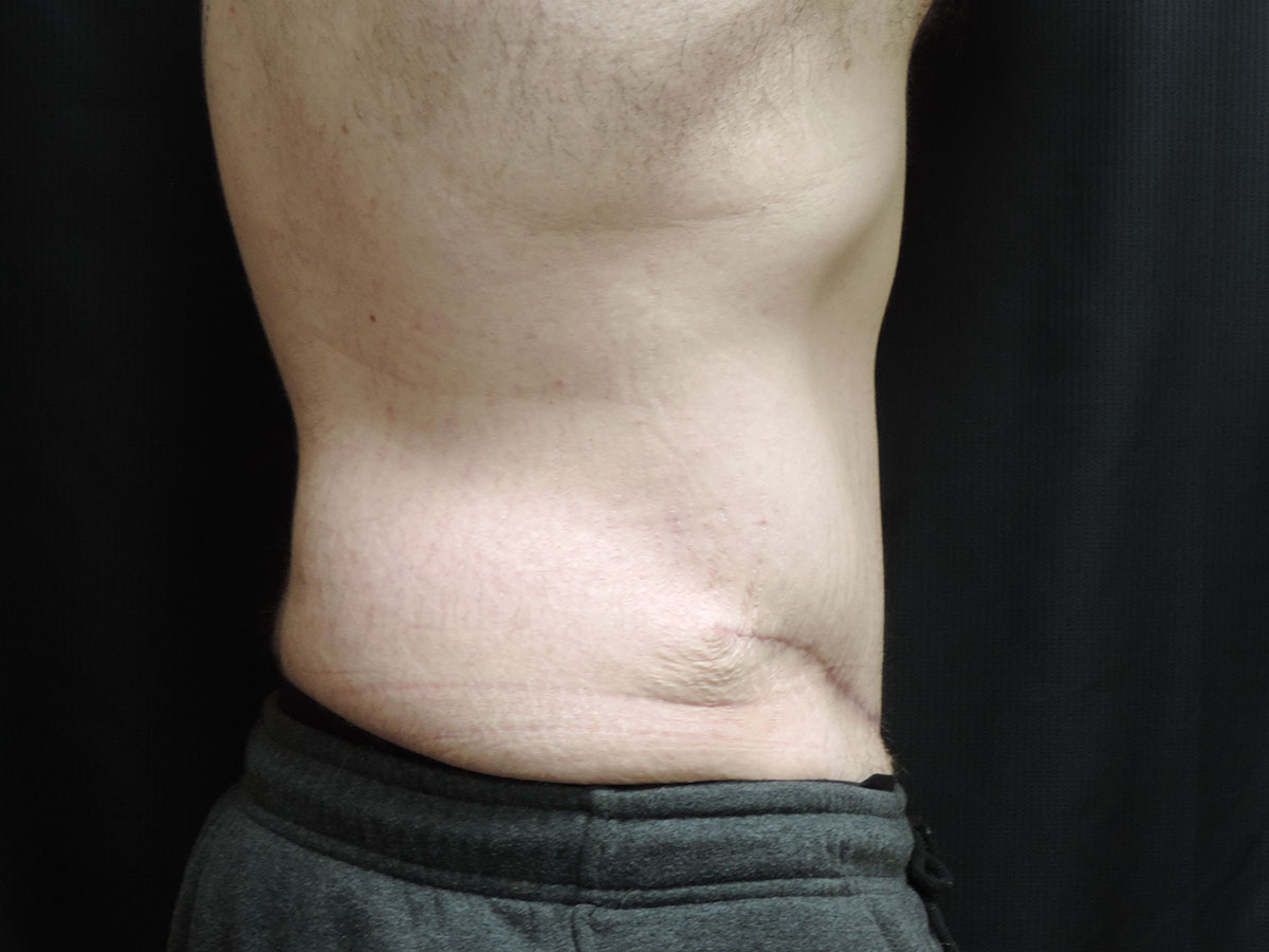 Tummy Tuck Akron Before & After | Patient 05 Photo 1