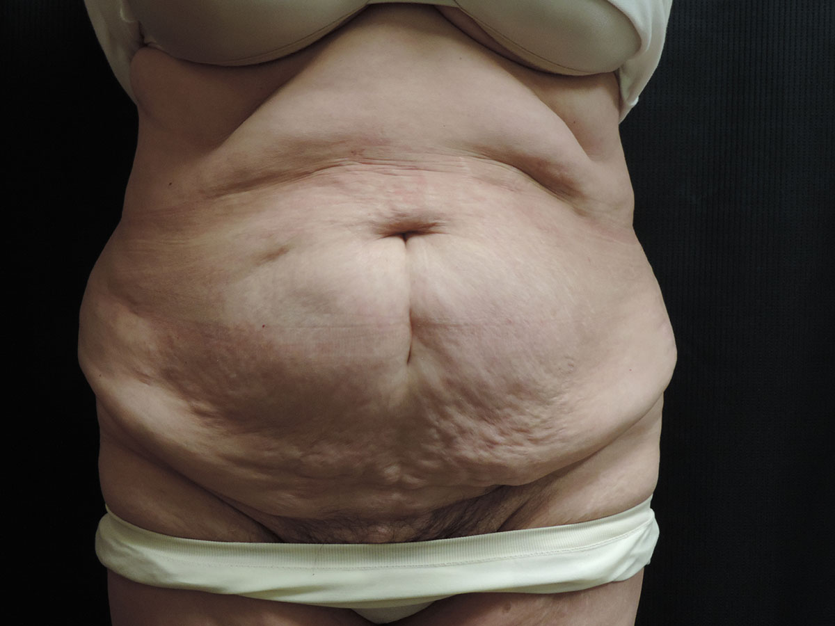 Tummy Tuck Akron Before & After | Patient 06 Photo 0 Thumb