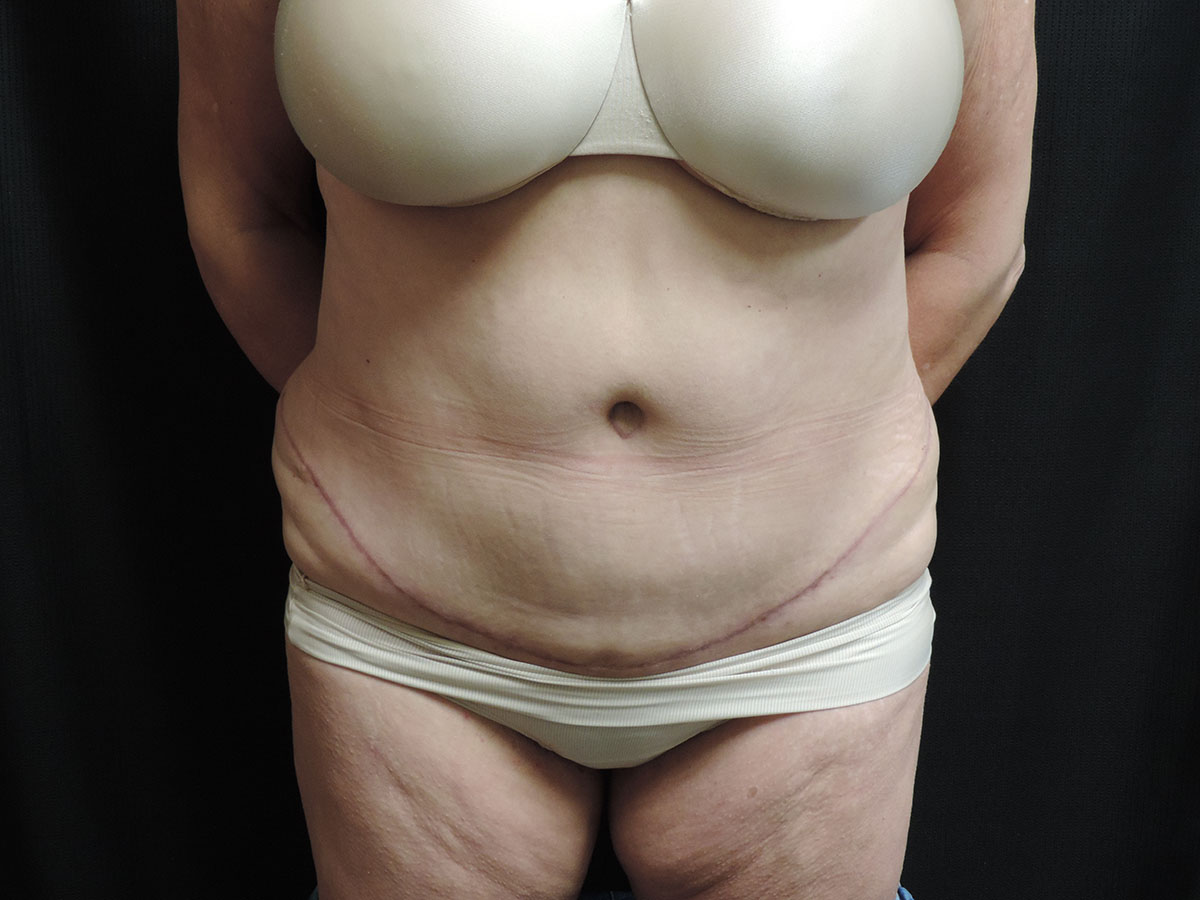Tummy Tuck Akron Before & After | Patient 06 Photo 1 Thumb