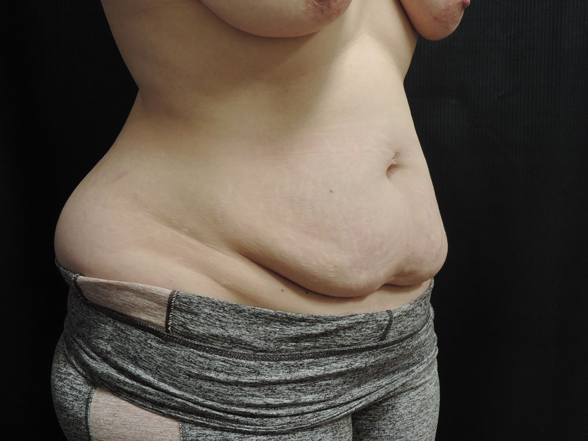 Tummy Tuck Akron Before & After | Patient 07 Photo 0