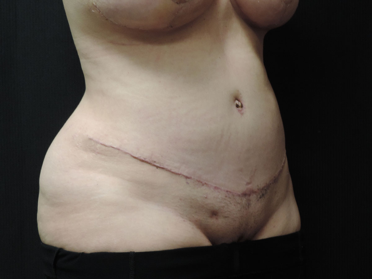 Tummy Tuck Akron Before & After | Patient 07 Photo 1