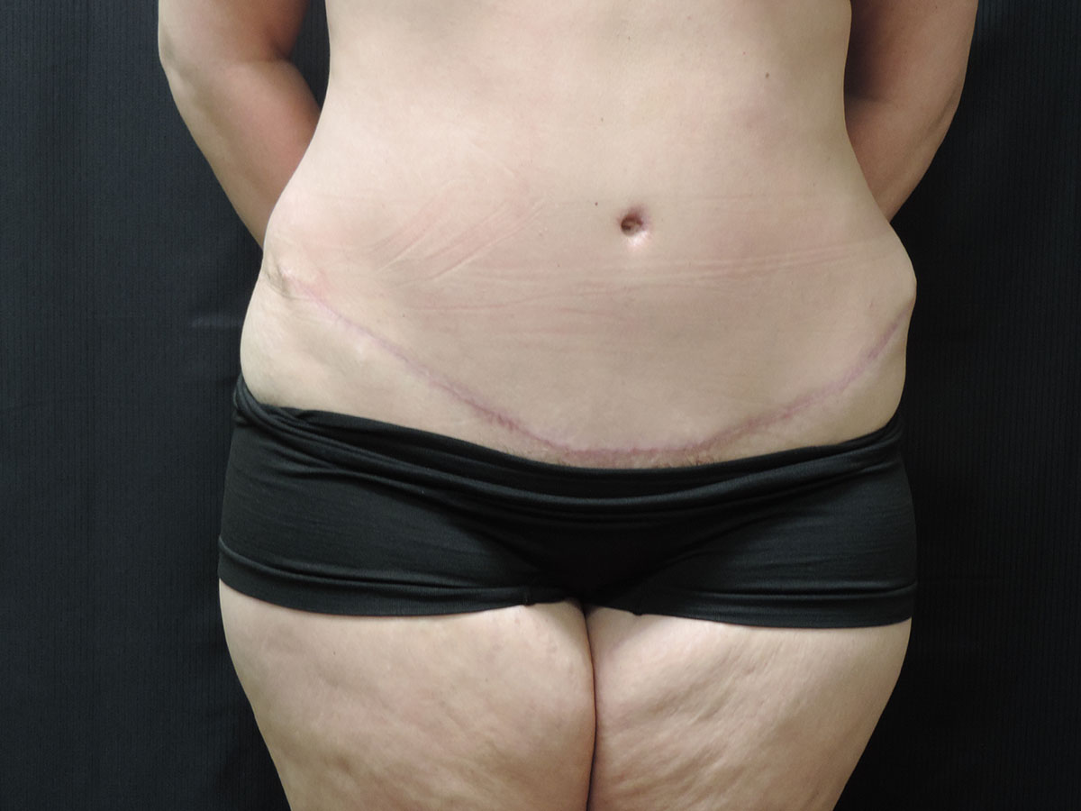Tummy Tuck Akron Before & After | Patient 09 Photo 1 Thumb