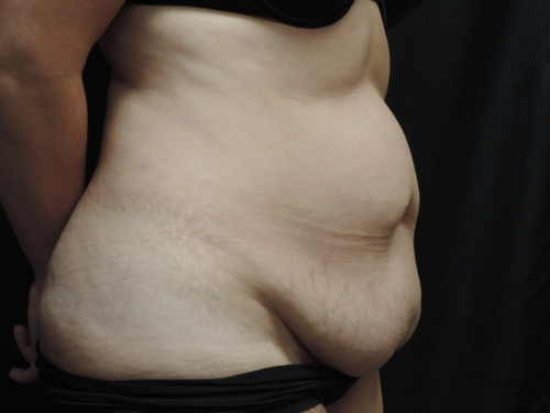 Tummy Tuck Akron Before & After | Patient 09 Photo 2 Thumb