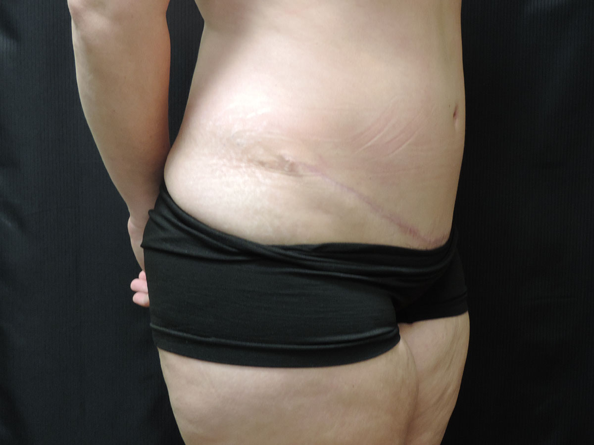 Tummy Tuck Akron Before & After | Patient 09 Photo 3 Thumb
