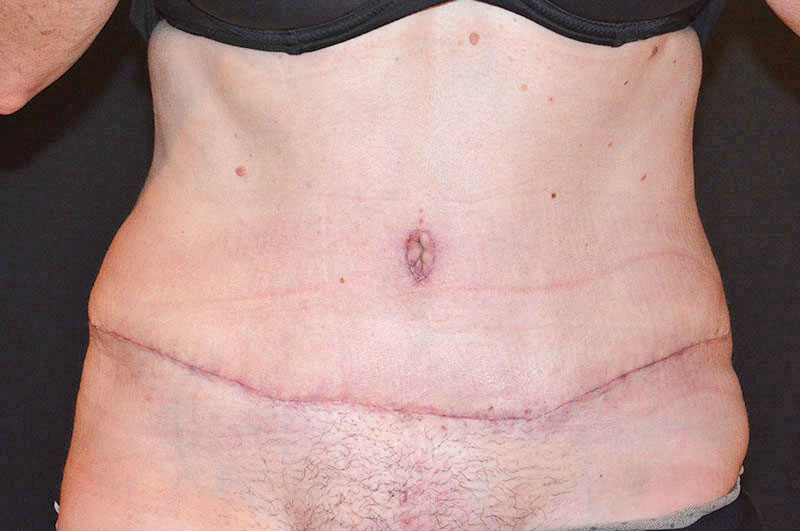 Tummy Tuck Akron Before & After | Patient 10 Photo 1 Thumb