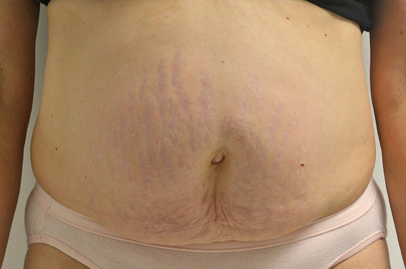 Tummy Tuck Akron Before & After | Patient 11 Photo 0 Thumb