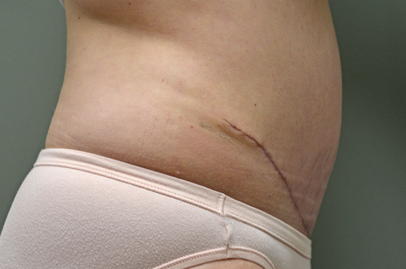 Tummy Tuck Akron Before & After | Patient 11 Photo 3 Thumb