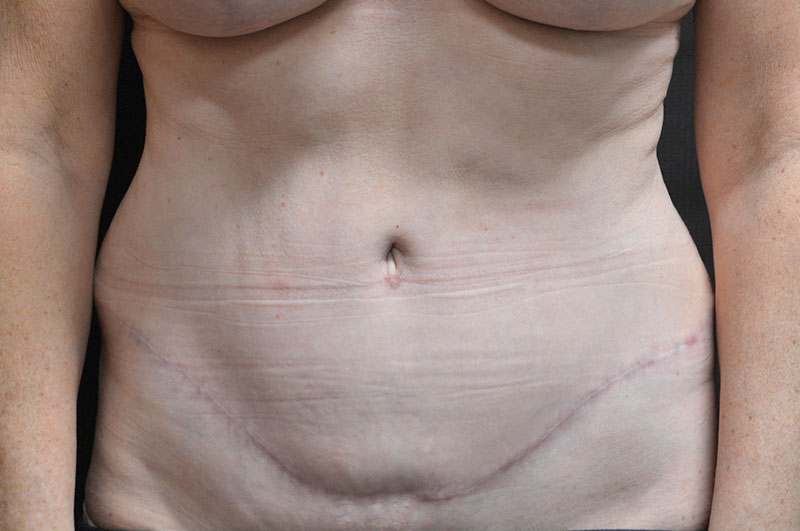 Tummy Tuck Akron Before & After | Patient 14 Photo 1