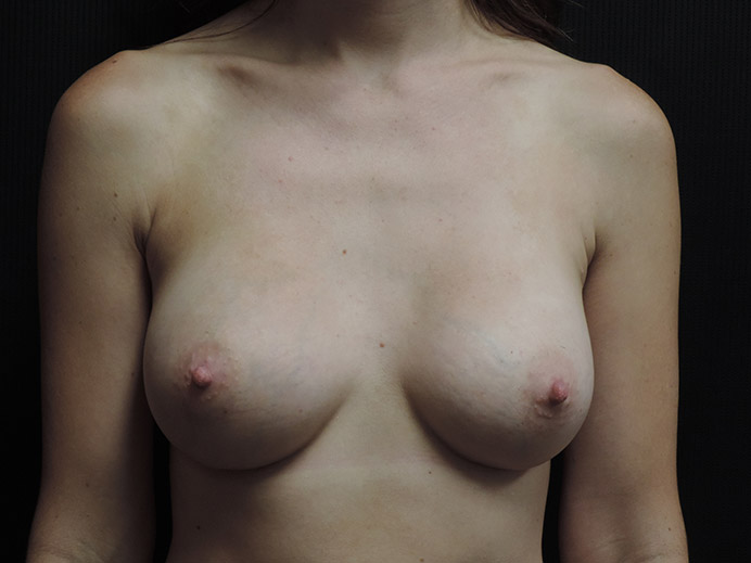 Breast Augmentation Akron Before & After | Patient 03 Photo 1