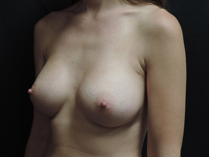 Breast Augmentation Akron Before & After | Patient 03 Photo 3