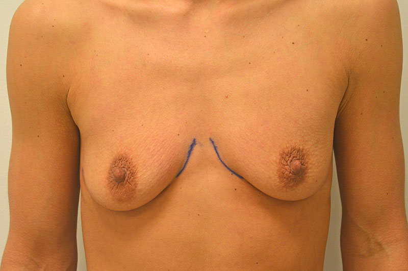 Breast Augmentation Akron Before & After | Patient 06 Photo 0