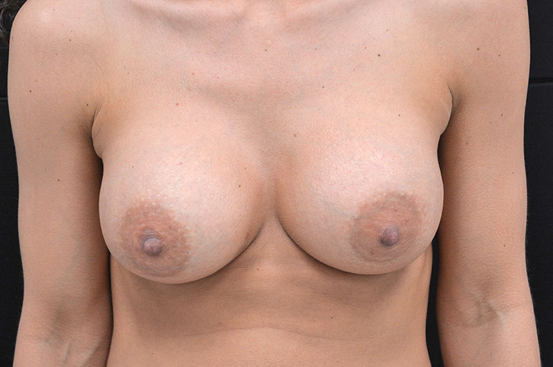 Breast Augmentation Akron Before & After | Patient 06 Photo 1