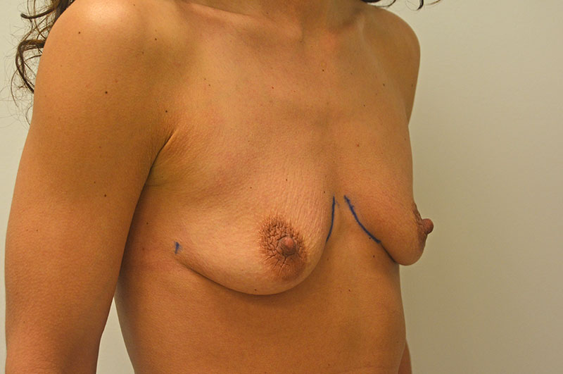 Breast Augmentation Akron Before & After | Patient 06 Photo 2