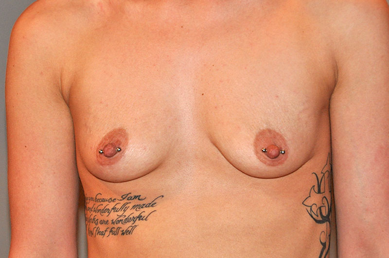 Breast Augmentation Akron Before & After | Patient 07 Photo 0