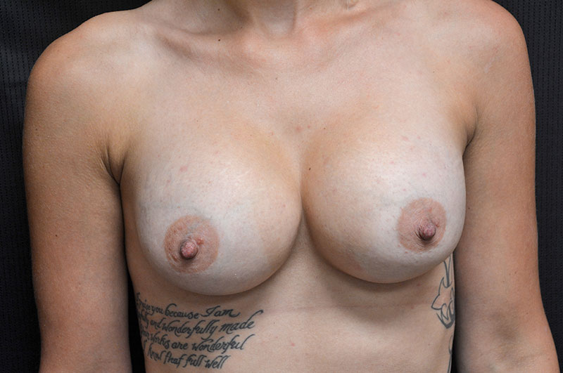 Breast Augmentation Akron Before & After | Patient 07 Photo 1