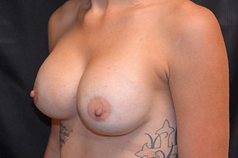Breast Augmentation Akron Before & After | Patient 07 Photo 3