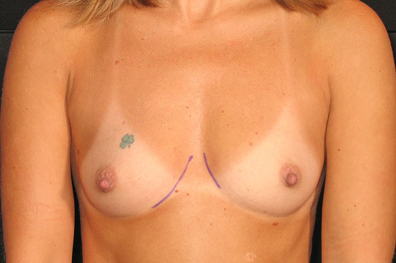 Breast Augmentation Akron Before & After | Patient 08 Photo 0