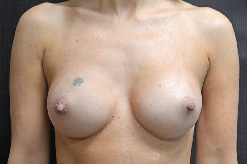 Breast Augmentation Akron Before & After | Patient 08 Photo 1