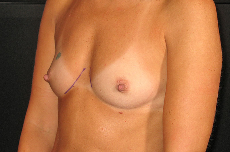 Breast Augmentation Akron Before & After | Patient 08 Photo 2