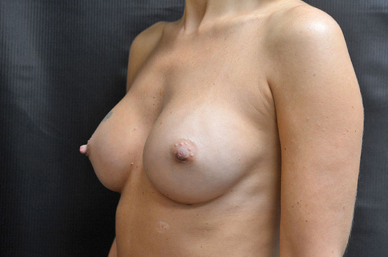 Breast Augmentation Akron Before & After | Patient 08 Photo 3