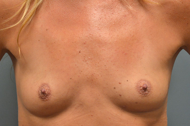 Breast Augmentation Akron Before & After | Patient 09 Photo 0
