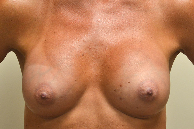 Breast Augmentation Akron Before & After | Patient 09 Photo 1