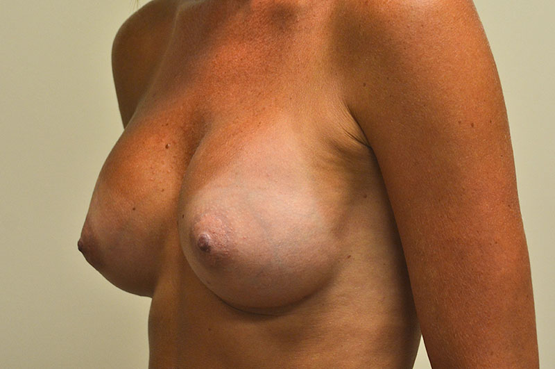Breast Augmentation Akron Before & After | Patient 09 Photo 3