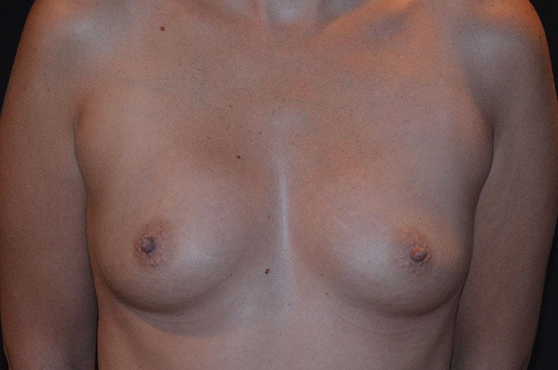 Breast Augmentation Akron Before & After | Patient 10 Photo 0