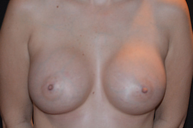 Breast Augmentation Akron Before & After | Patient 10 Photo 1