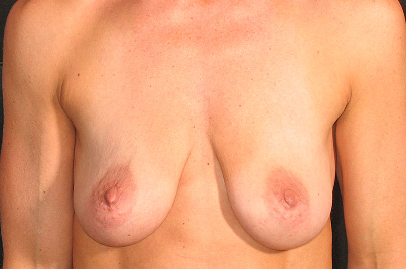 Breast Lift with Implants Akron Before & After | Patient 02 Photo 0 Thumb
