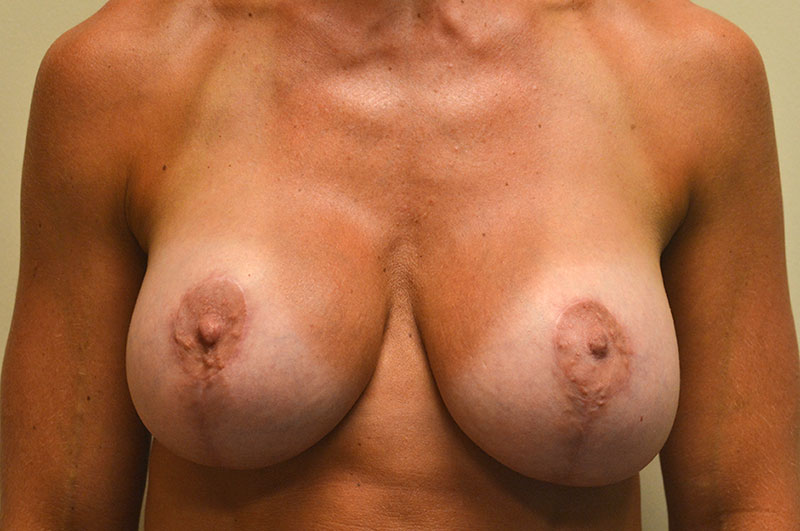 Breast Lift with Implants Akron Before & After | Patient 02 Photo 1 Thumb