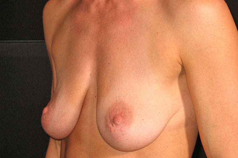 Breast Lift with Implants Akron Before & After | Patient 02 Photo 2 Thumb