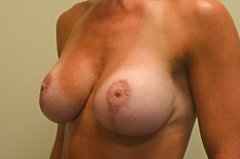 Breast Lift with Implants Akron Before & After | Patient 02 Photo 3 Thumb