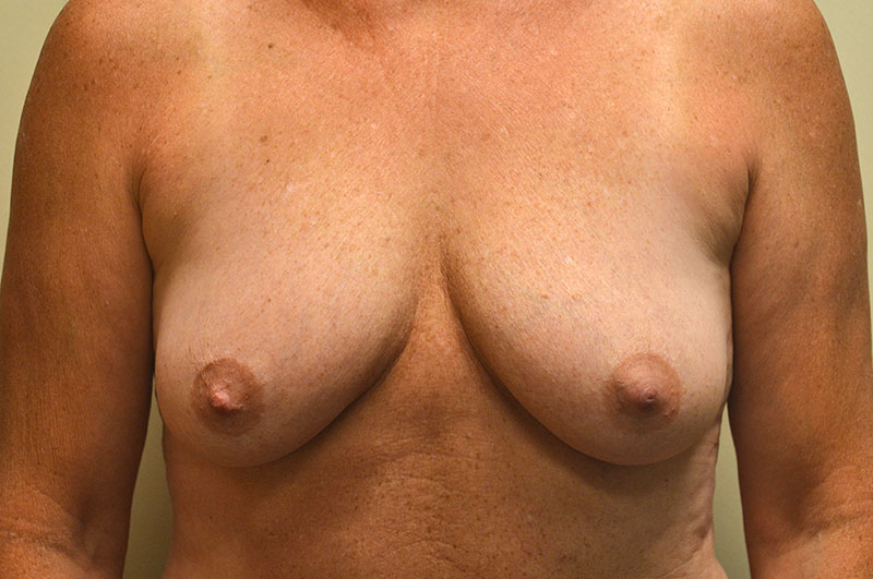 Breast Lift with Implants Akron Before & After | Patient 03 Photo 0 Thumb