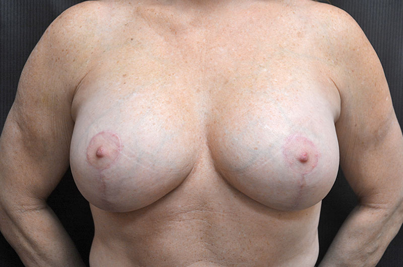 Breast Lift with Implants Akron Before & After | Patient 03 Photo 1 Thumb