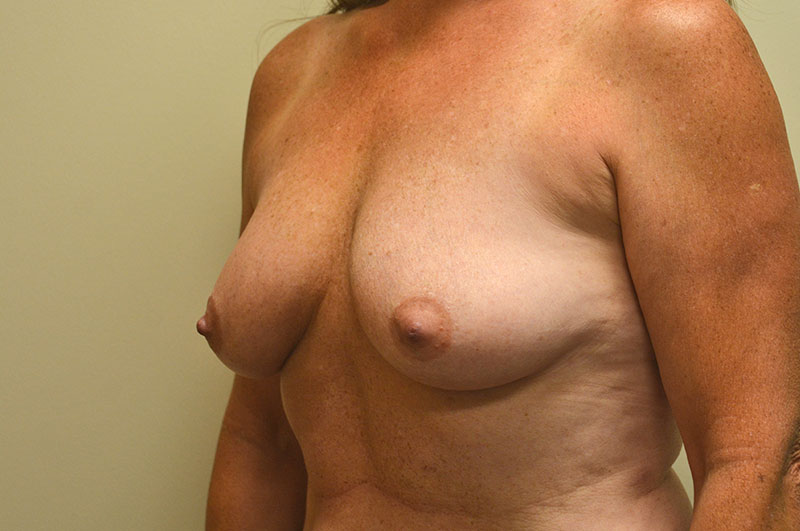 Breast Lift with Implants Akron Before & After | Patient 03 Photo 2 Thumb