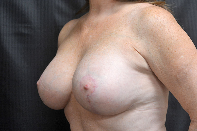 Breast Lift with Implants Akron Before & After | Patient 03 Photo 3 Thumb